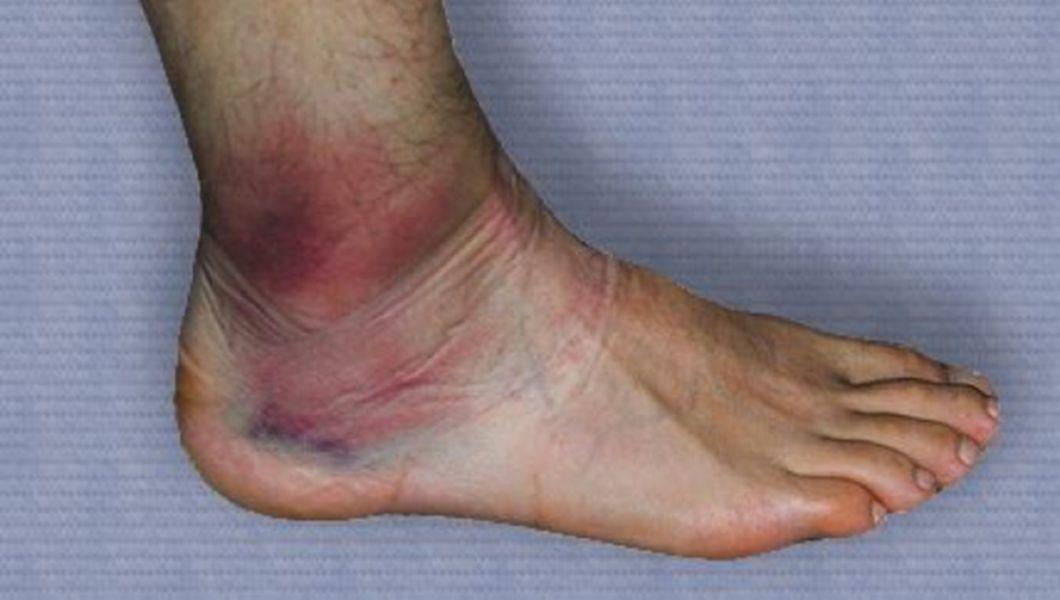 edem după ruperea ligamentelor gleznei
