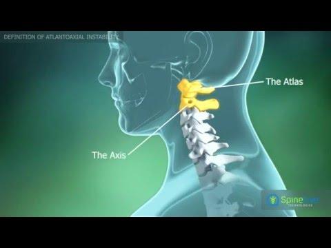 Unguent pentru durere în articulațiile coloanei vertebrale