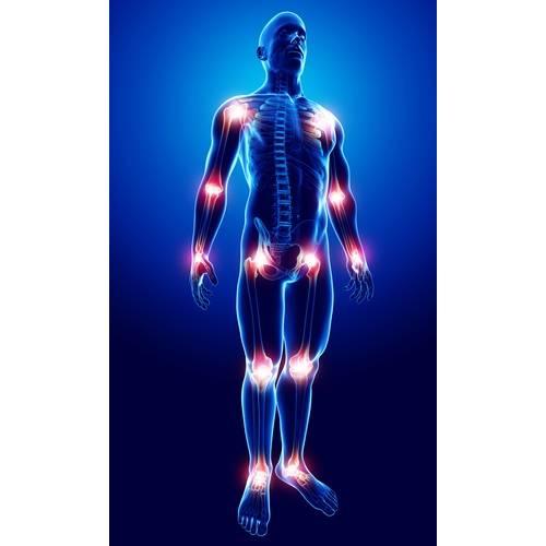 durere în articulațiile simetrice)