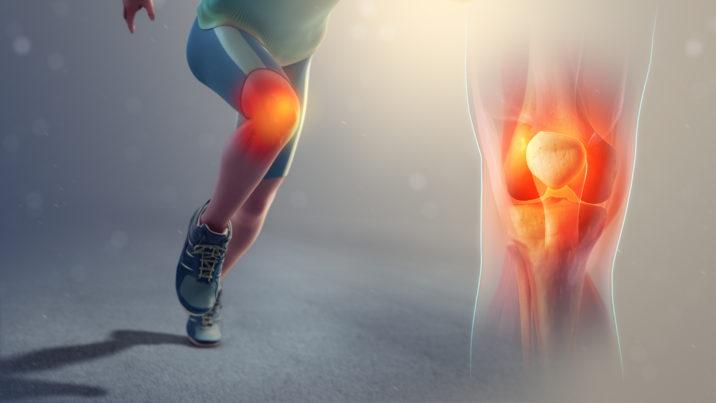 Remedii pentru artrita durerilor articulare)