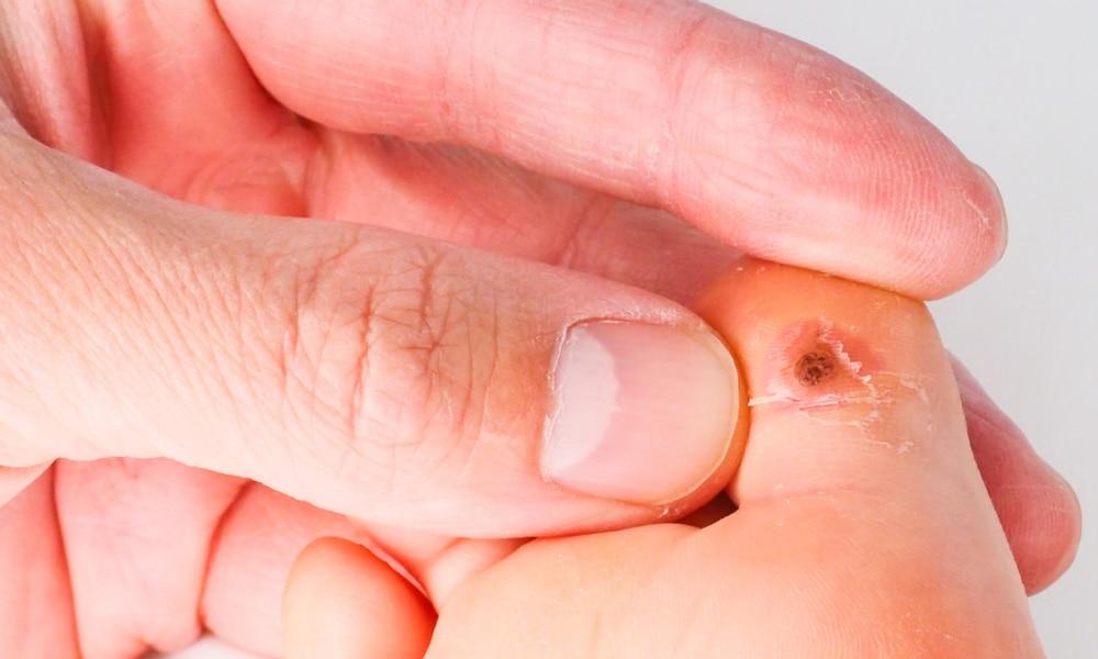 tratamentul cu șoldul cochar vara