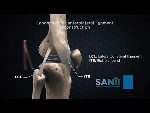 Edem tratament artroza genunchiului