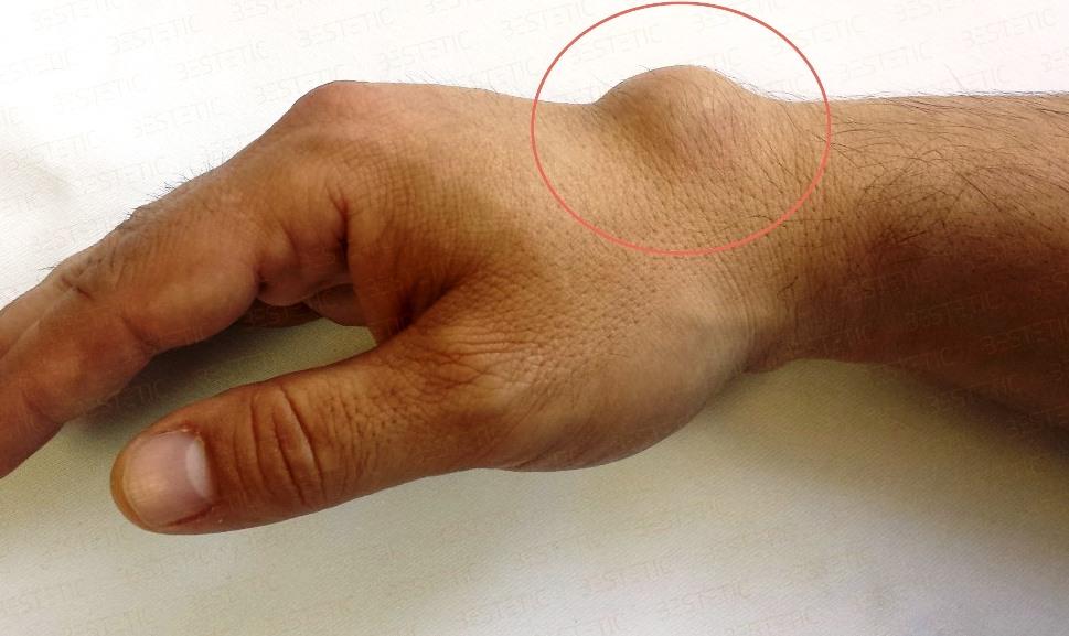 inflamația încheieturii mâinii)
