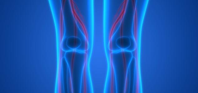 osteonecroza spontană a tratamentului articulației genunchiului