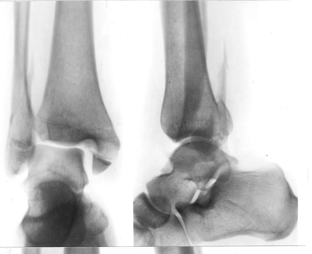artroza posttraumatică a tratamentului articular subtalar)