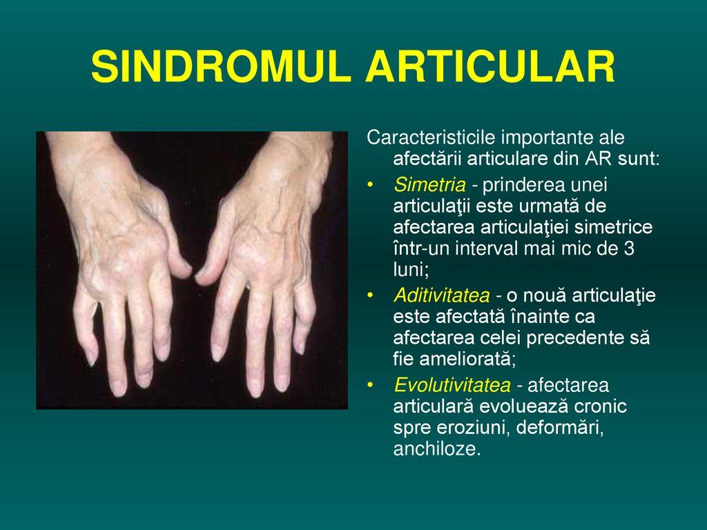 serul bolii articulare