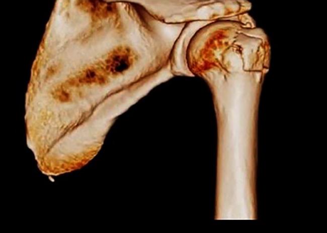vânătaia durerii articulațiilor umărului ce este)
