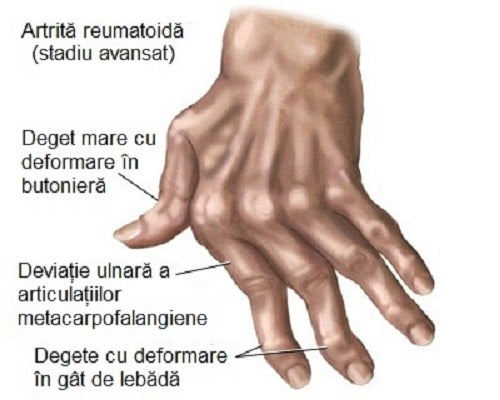 cura de deformare a artritei)