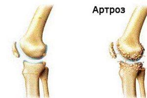 ceea ce este imposibil cu artroza articulației genunchiului)