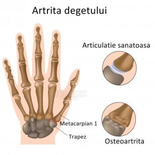 semne de artrită pe degete)
