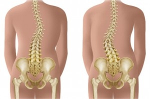 deteriorarea meniscului interior al articulației genunchiului stâng arthra condroitină medicament Preț