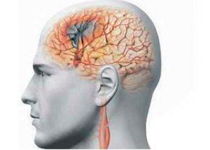 agenți care îmbunătățesc circulația cerebrală în osteochondroză)