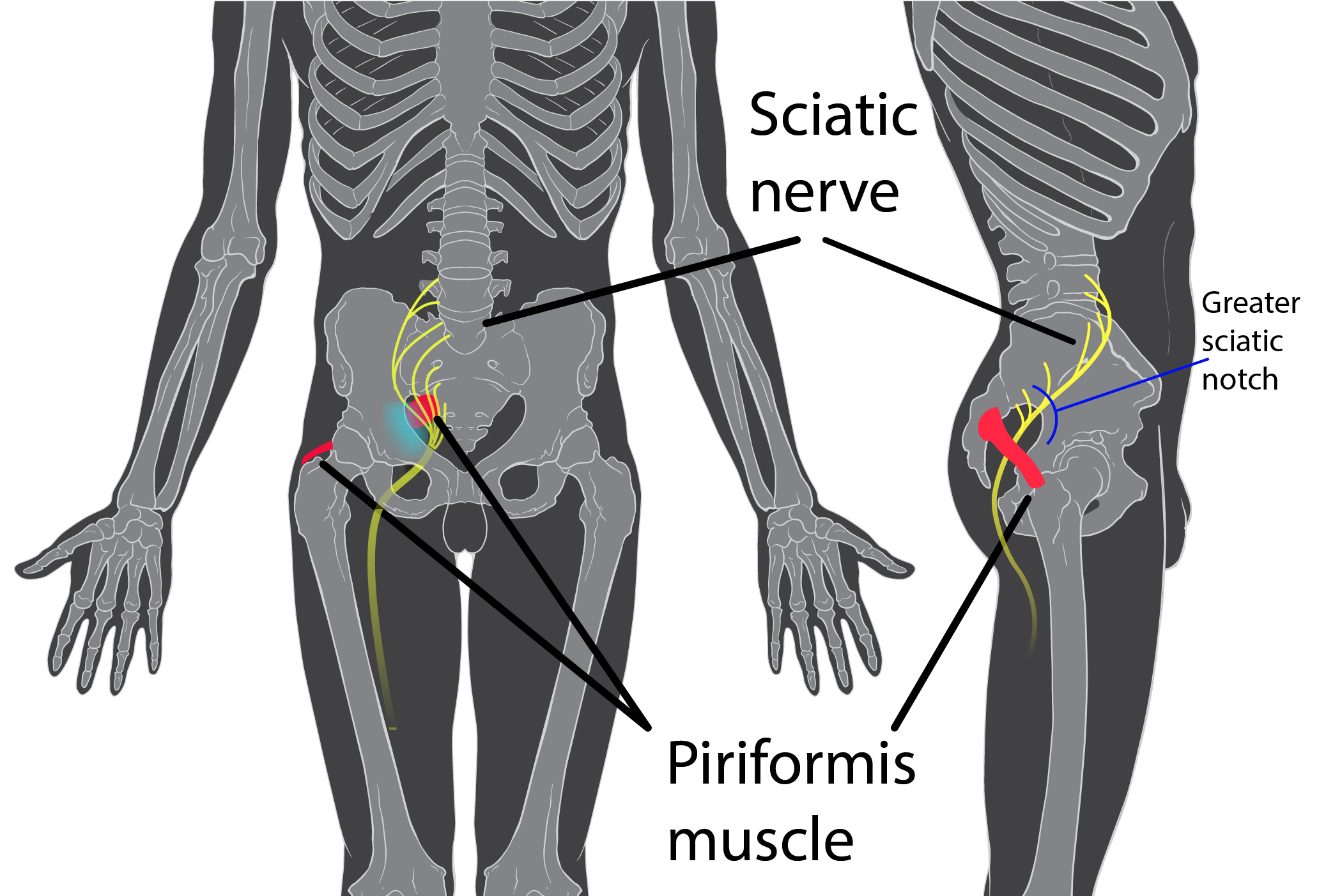 dureri de șold pe lateral