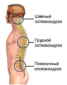 Geluri pentru osteochondroza inferioară a spatelui