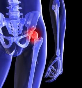 de ce articulația șoldului doare după mers