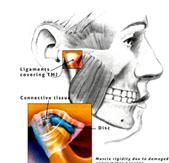 Durere la înghițirea articulației temporale