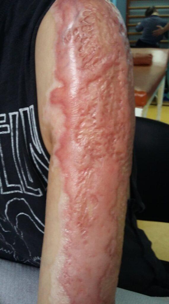 articulațiile pot răni din carne)