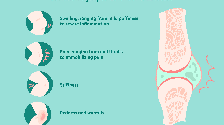 Tratamentul articular cu asperină Dureri de genunchi la o vârstă fragedă