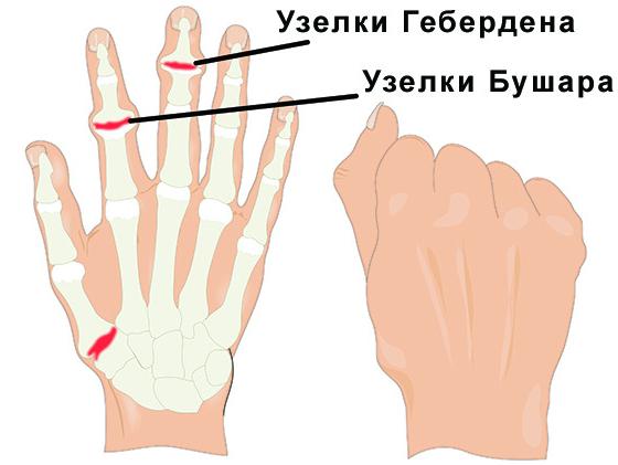 как вылечить остеоартроз лучезапястного сустава cel mai eficient instrument de reparație a articulațiilor