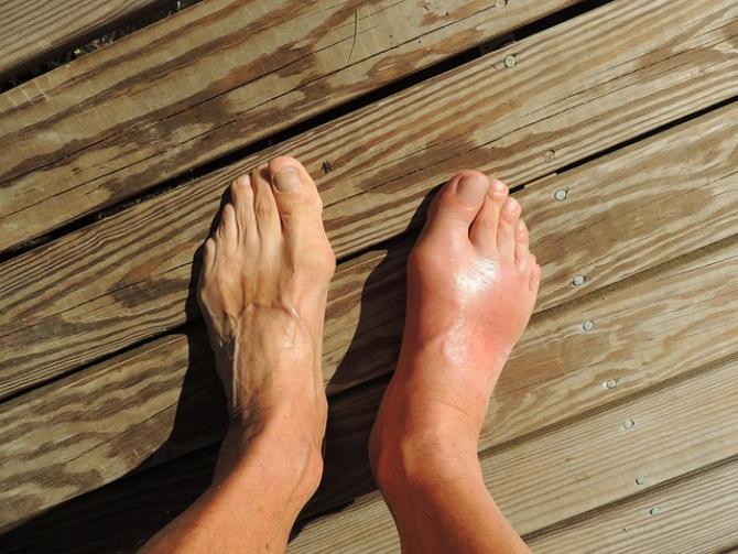 artrita sau artroza tratamentului articulațiilor boala articulara Franta