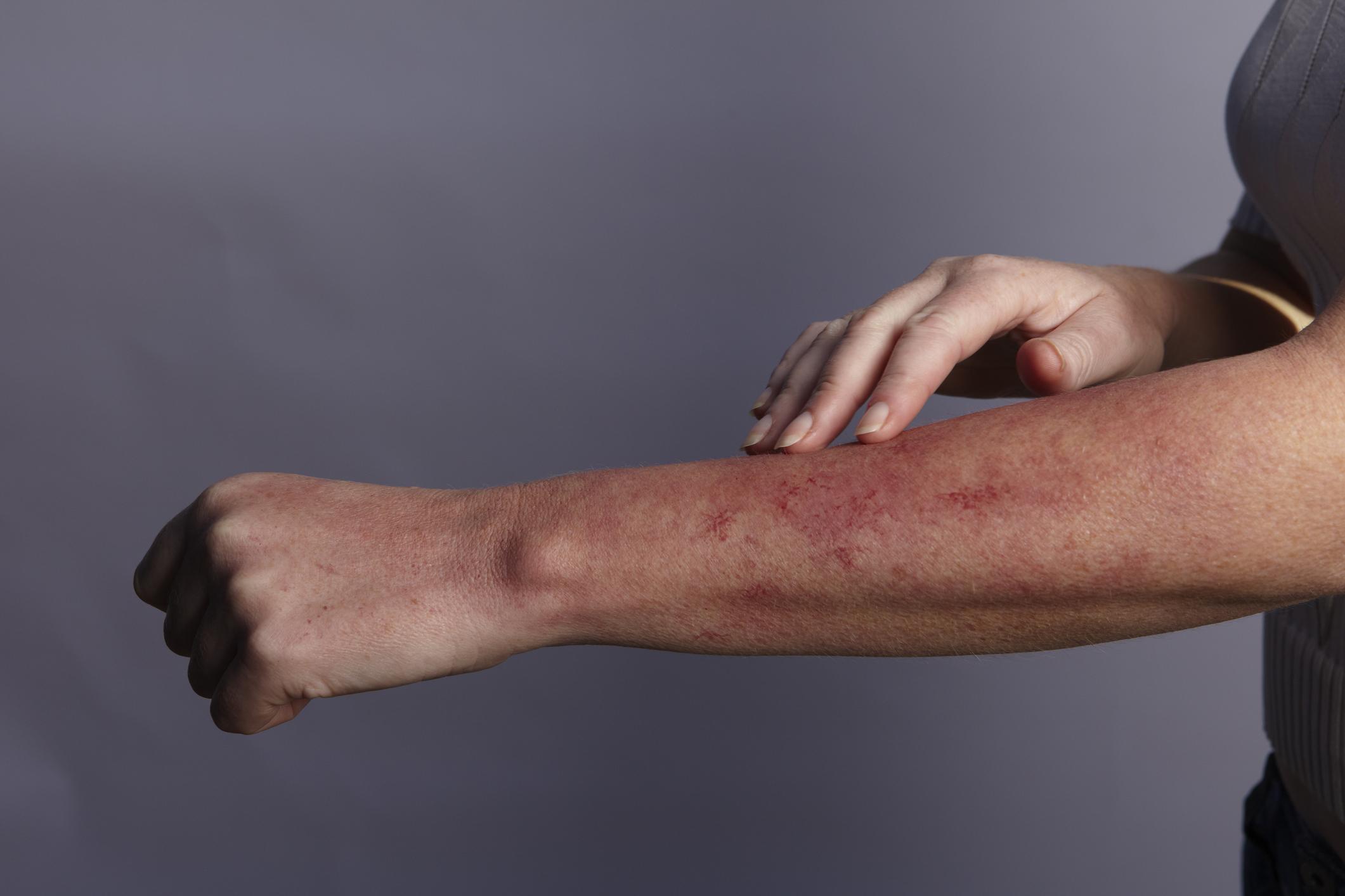 articulație cutanată și dureroasă