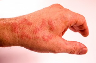 pete roșii și dureri articulare