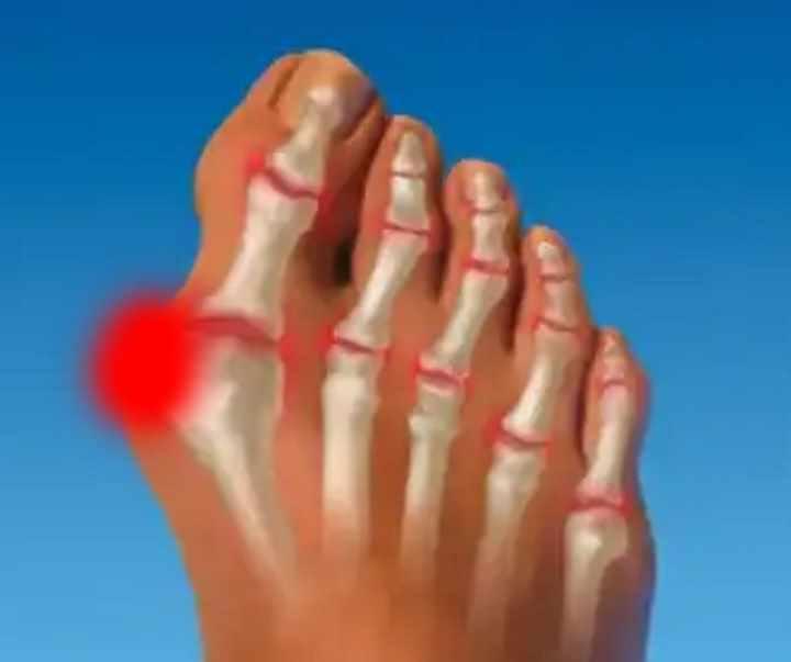 articulația degetului mare deasupra)