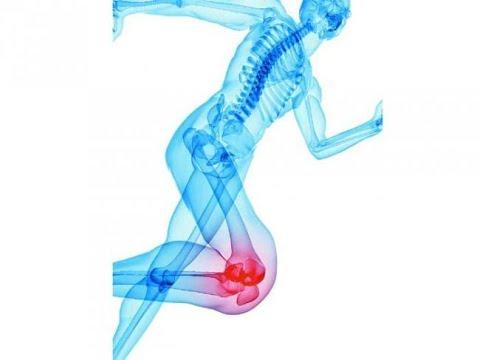 bilă medicală cu artroză a articulației gleznei)