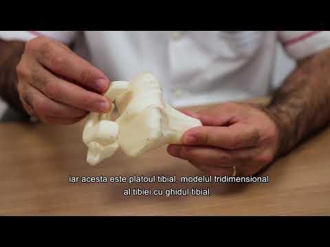 artroza 2 Tratamentul articulației genunchiului de 3 grade