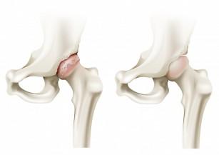 unde tratează artroza articulației șoldului