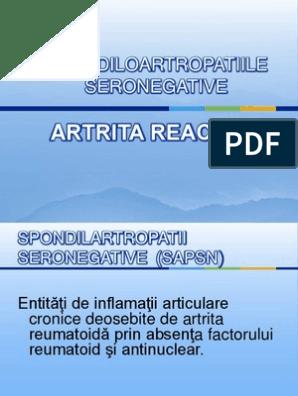 artrita pe mana dreapta geluri din osteochondroza