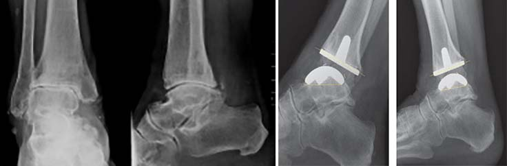 ce pot bea cu artroza articulației gleznei