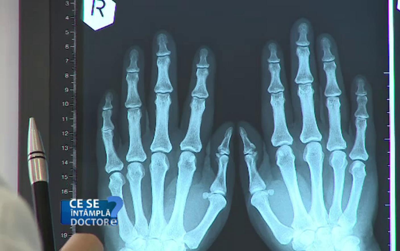 radiografie articulară pentru artrita reumatoidă