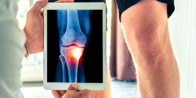 boala congenitala a articulatiilor genunchiului)