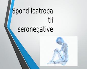 boli ușoare la nivelul articulațiilor