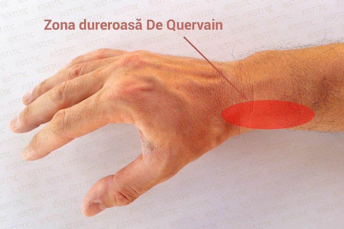 cum să tratezi sinovita la încheietura mâinii)