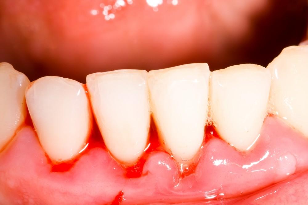 sângerarea gingiilor dureri la nivelul articulațiilor)