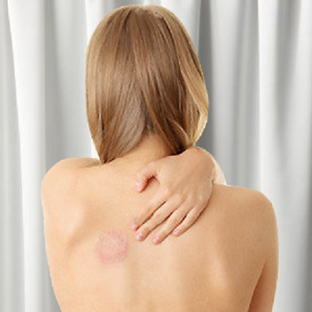 dureri articulare la cot în timpul exercițiului
