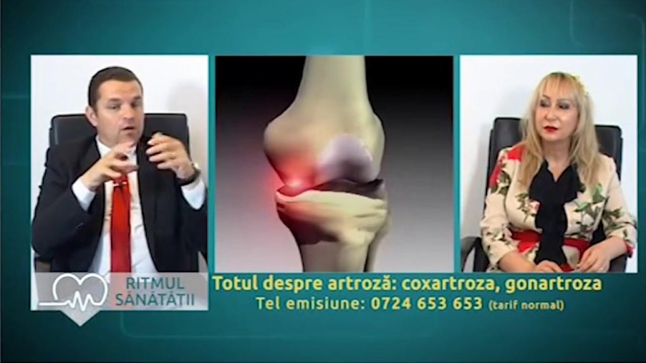 tratamentul artrozei unco-vertebrale