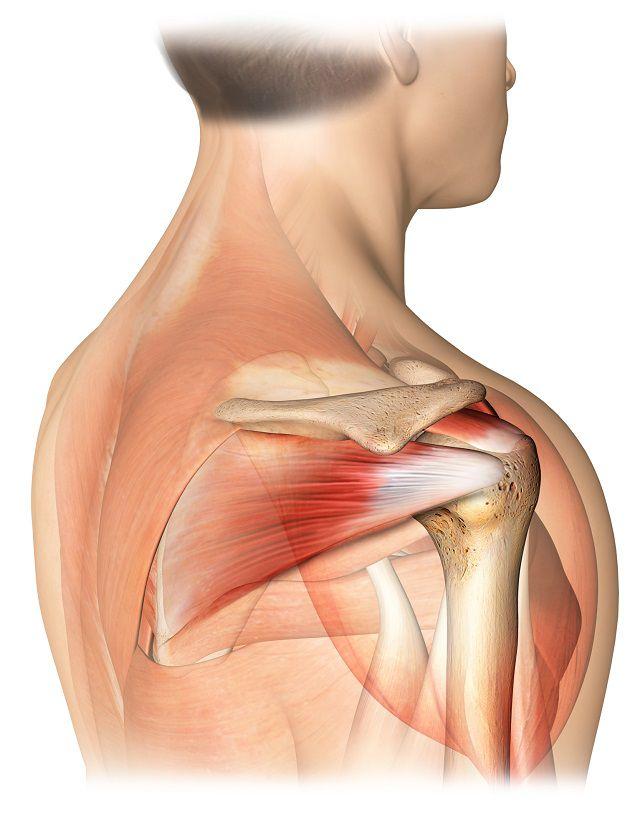 Ruperea manșetei tratamentului articulației umărului, Fresh articles