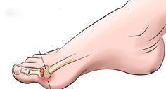 articulațiile degetelor doare decât frotiul Sunătoare în tratamentul articulațiilor