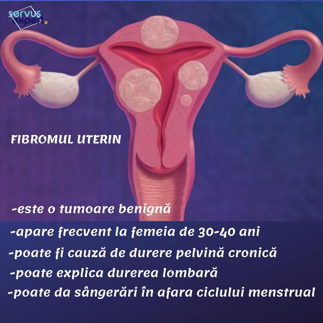 Boala inflamatorie pelvina (BIP) | centru-respiro.ro