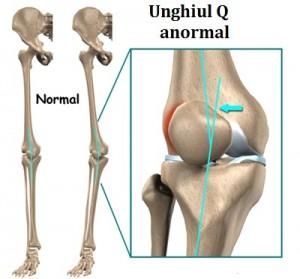 deplasarea patelii tratamentului articulației genunchiului)
