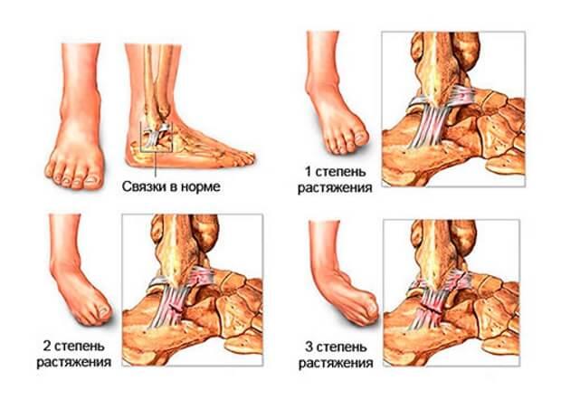 care este deteriorarea ligamentelor articulației gleznei)