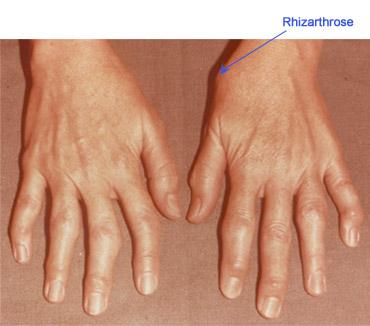 dureri articulare pe brațul degetului mijlociu