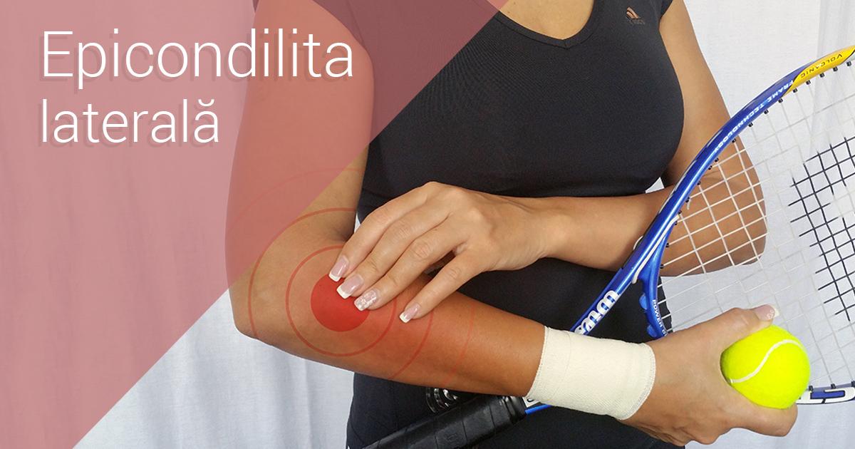 epicondilita simptomelor articulației cotului și tratamentul unguentului)