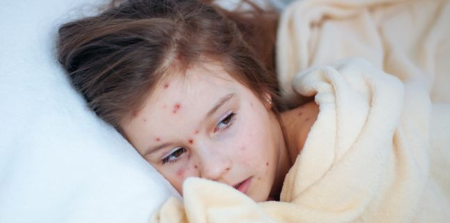 Totul despre Rujeola: Simptome, tratament si preventie