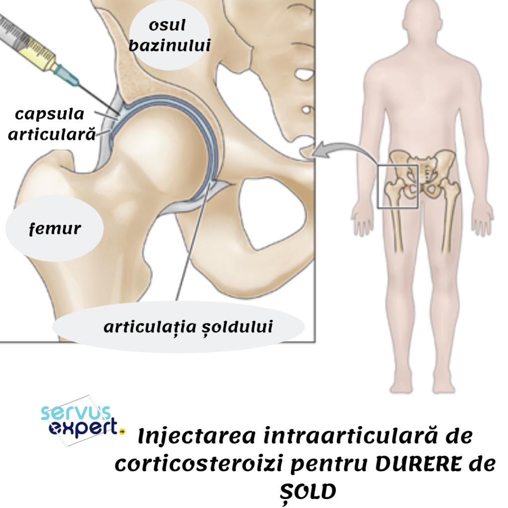 o injecție pentru durerea articulației șoldului