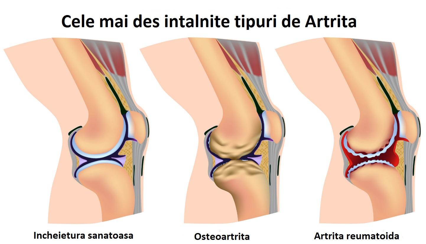 tratamentul artritei artrozei picioarelor)