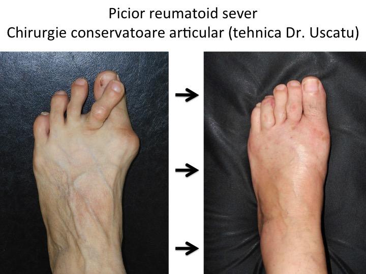 artroza reumatoidă a articulației gleznei)